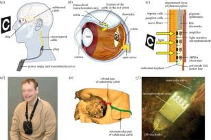 Retina-Implant-schematic